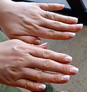 ばね指の原因