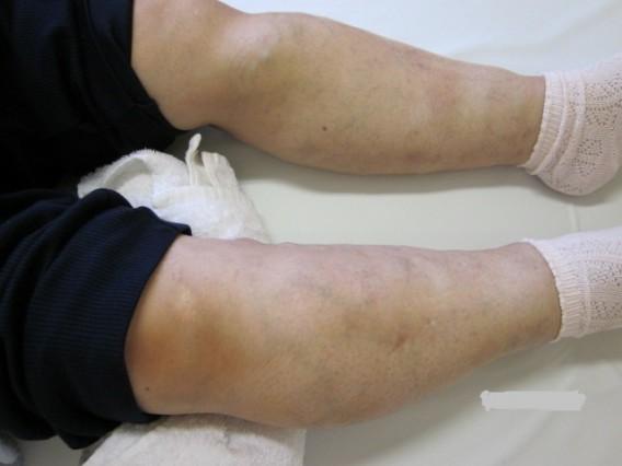 下肢静脈瘤も1回の施術でこれだけ違います。病院で手術をする前に・・