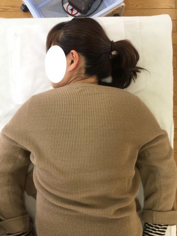 肩こりにもこんな変化が!美容にもつながる整体。ビフォーアフター
