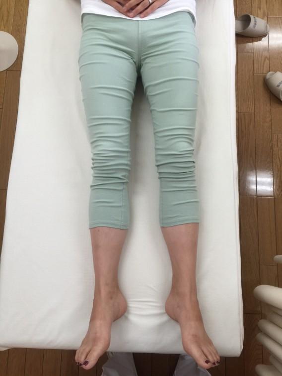 産後の腰痛施術を行えば、骨盤矯正も同時に行われる一石二鳥のビフォーアフター。
