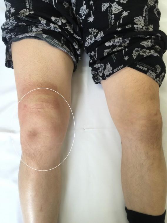 膝にたまった水(関節水腫)関節痛もたった一回の施術でご覧の通り。ビフォー・アフター