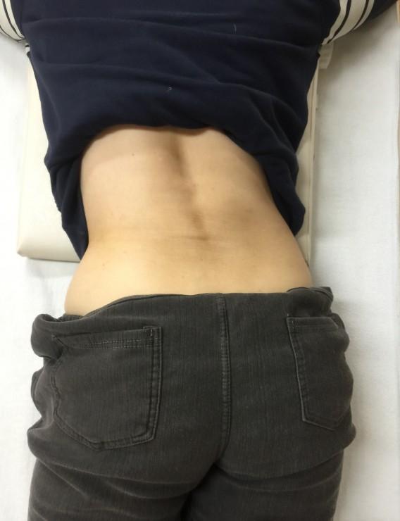 腰痛ヘルニア 骨盤矯正