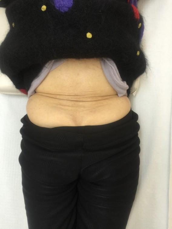このつぶれたような椎間板ヘルニアもたった1回の施術でご覧の通り。