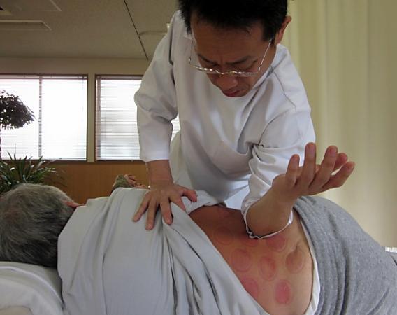 坐骨神経痛や足のしびれ