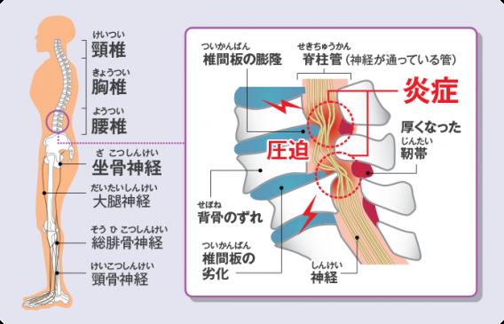 脊柱管狭窄は高齢者に多いが栄養も関係する!?