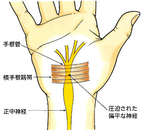 carpal_tunnel_syndrome_02