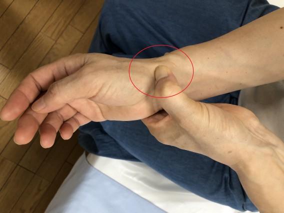 手首の痛みの腱鞘炎は、更年期症状のドケルバン病かも!?