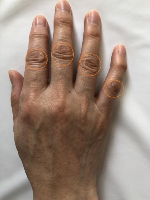 ブシャール 結節 マッサージ ばね指・ブシャール結節のマッサージ ...