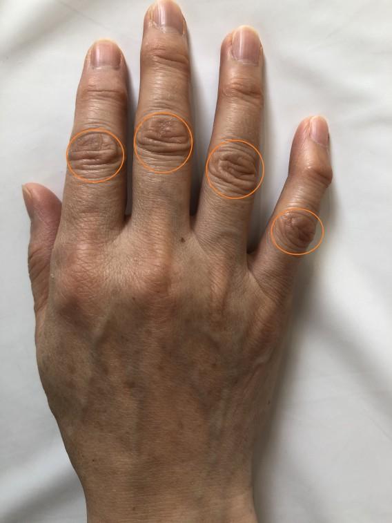 妊婦のお母さんへ、「最近、寒いせいか指の関節や手首が痛くて・・。」なんてありませんか?